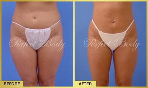 body reshaping