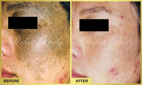 color correction and skin rejuvenation