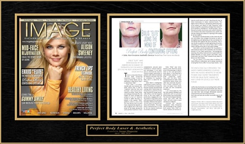 Achieving that Perfect Body: Thermage CPT, A Non-Invasive, Skin-Tightening Solution