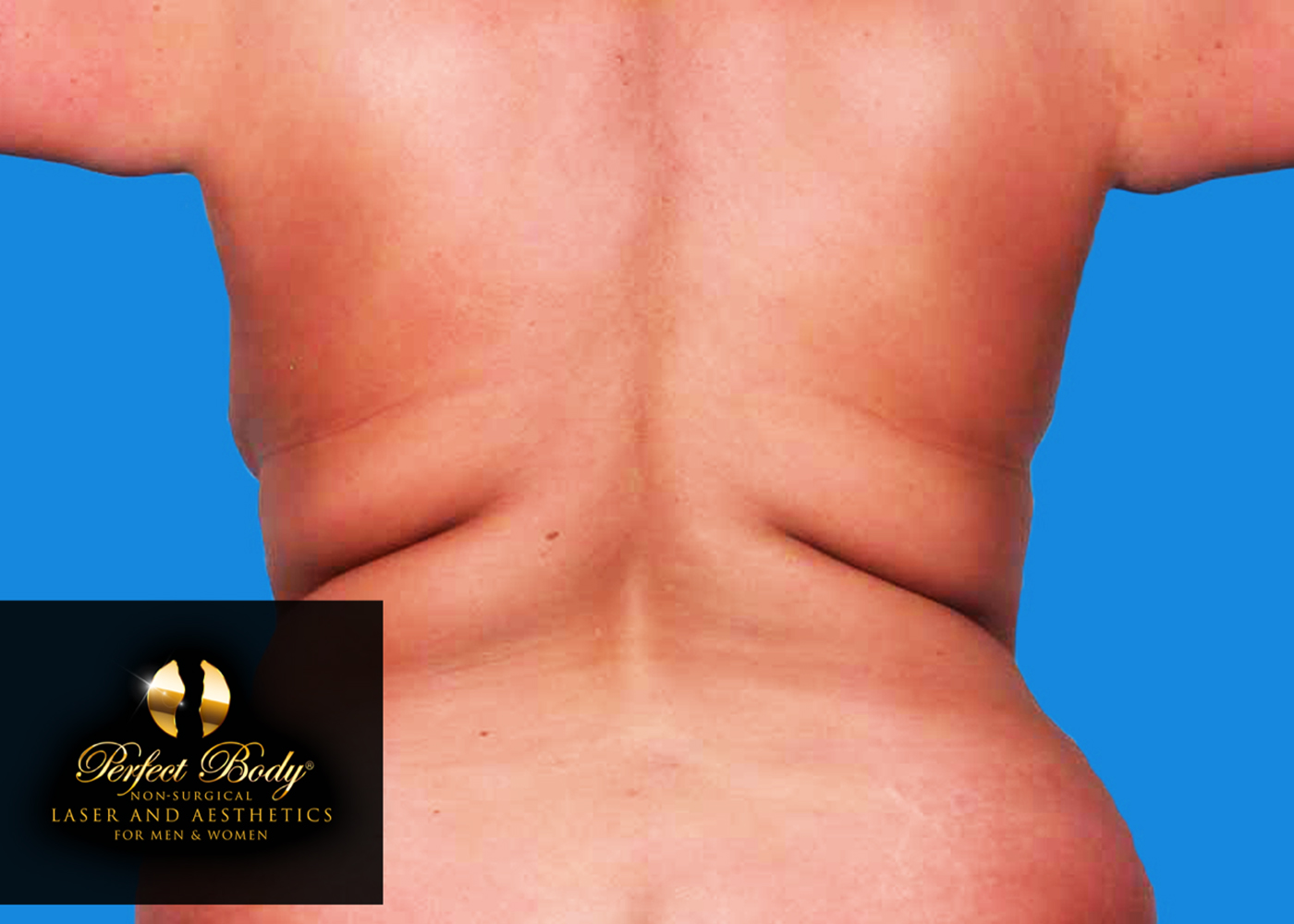 CoolSculpting laser fat removal for a Perfect Body!