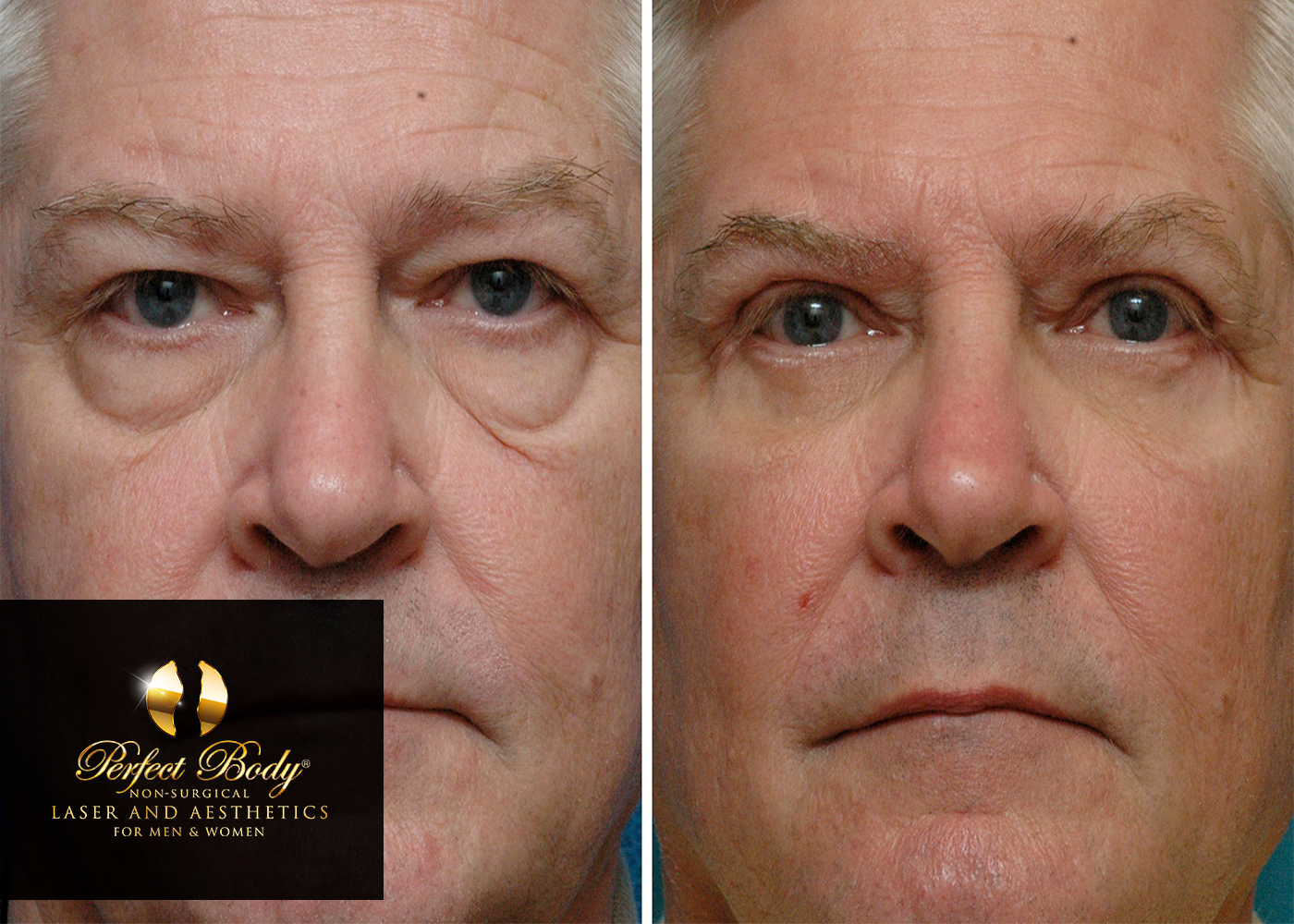 Ultherapy Laser Skin Tightening For The Face