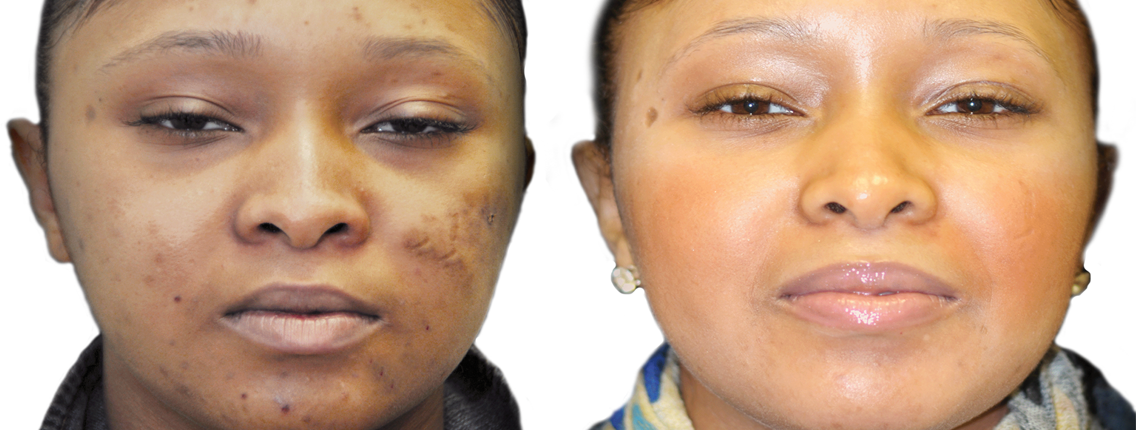 Long Island acne removal before and after