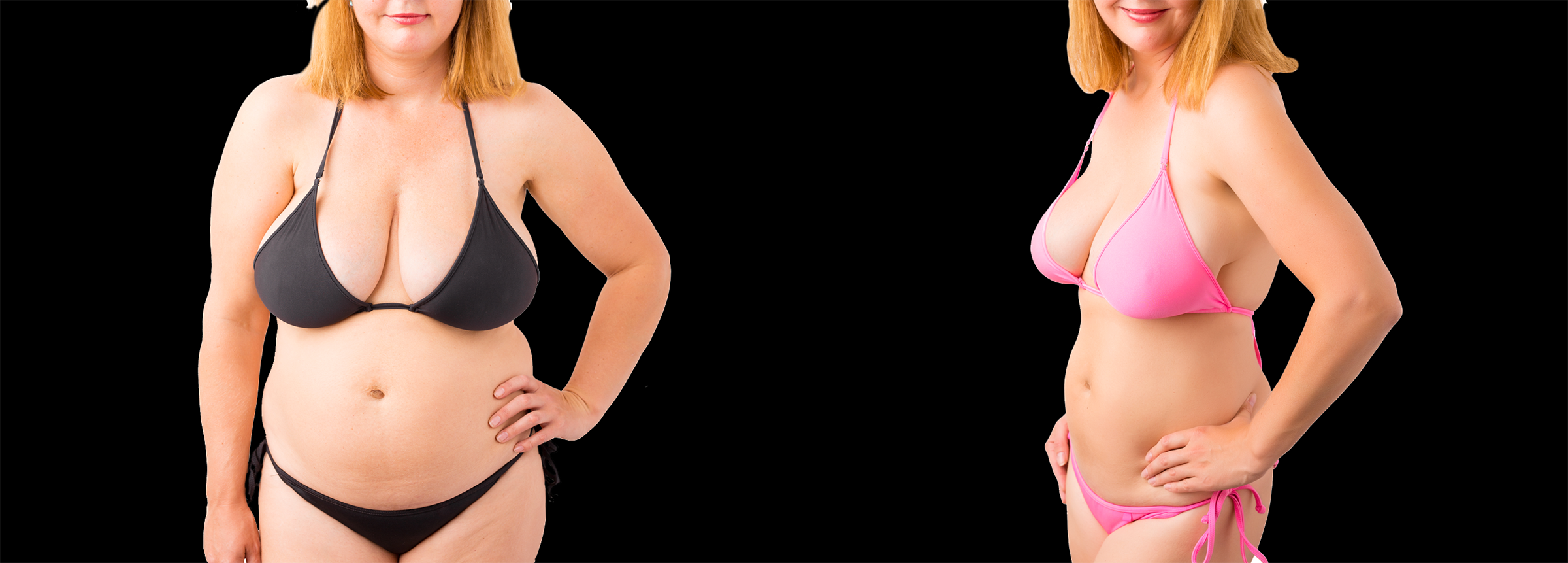 Long Island body reshaping before after