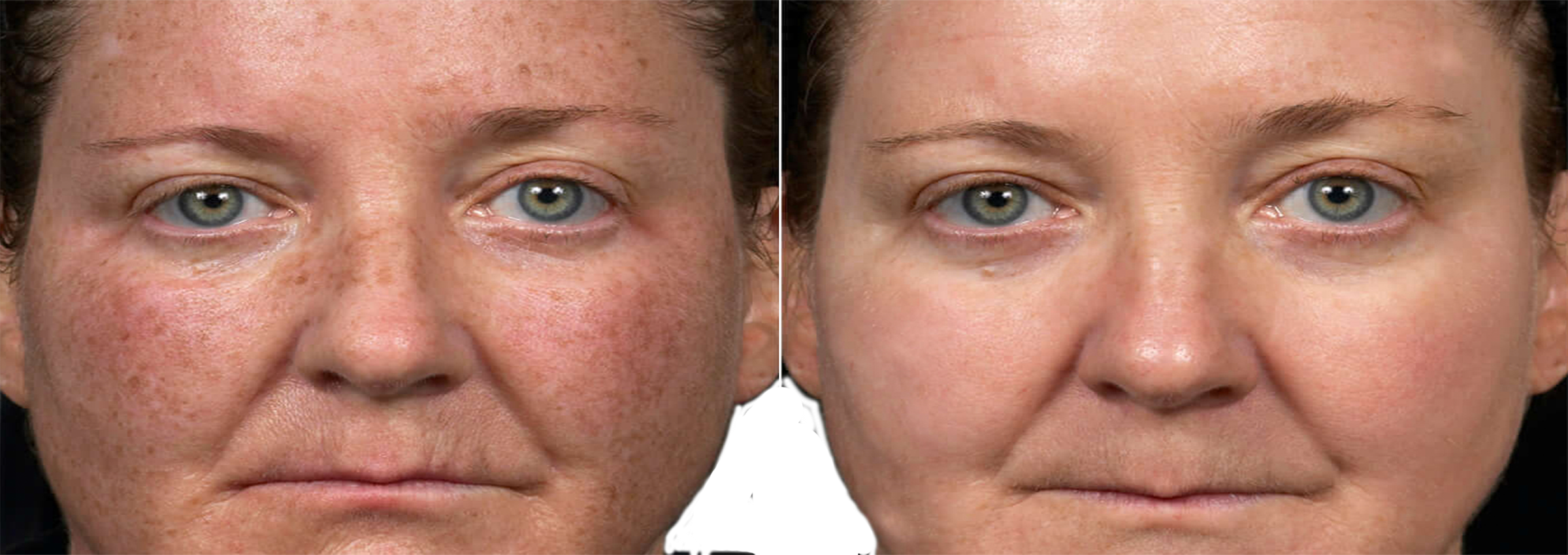 Long Island color correction and skin rejuvenation before after