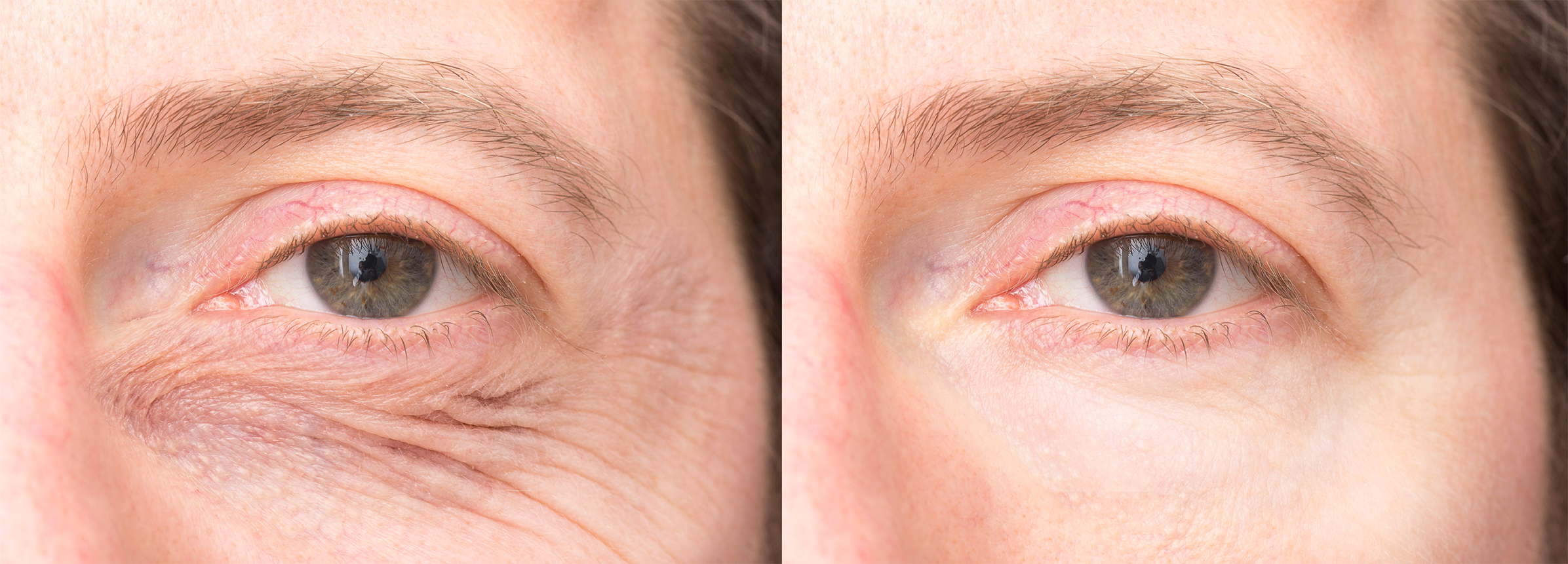 eyelid lifts before and after