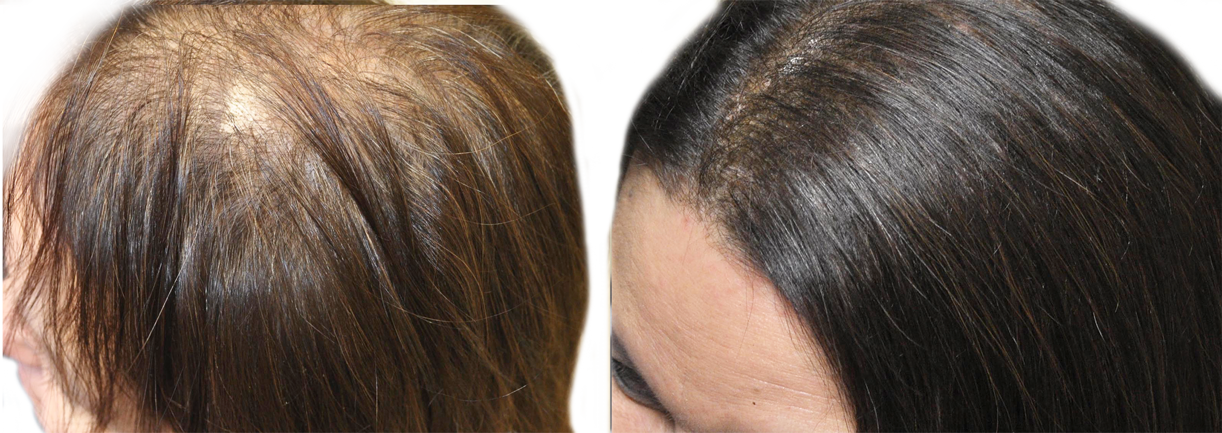 hair rejuvenation before and after