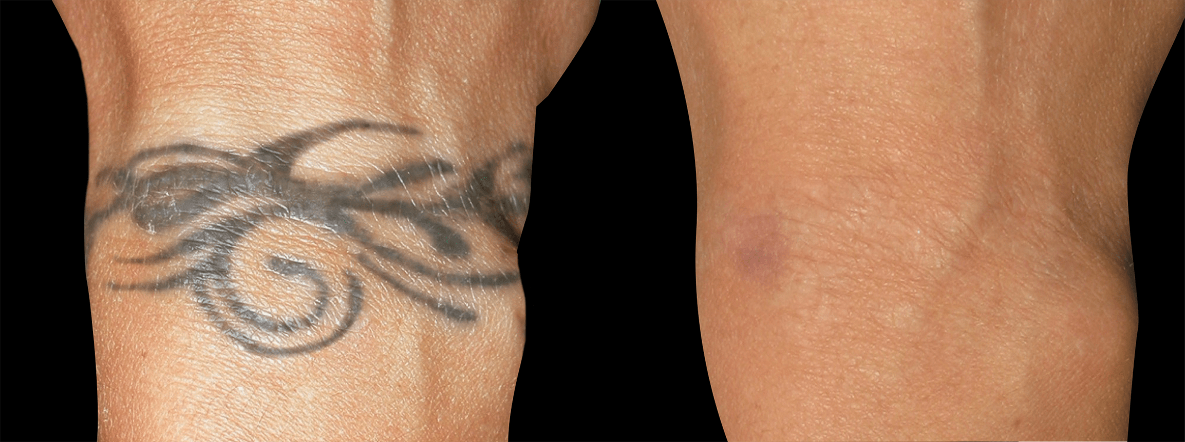 Long Island tattoo removal before and after